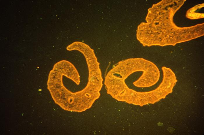 schistosomiasis in the us